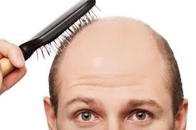 Alrededor del 60% de los hombres y el 30% de las mujeres padecen alopecia