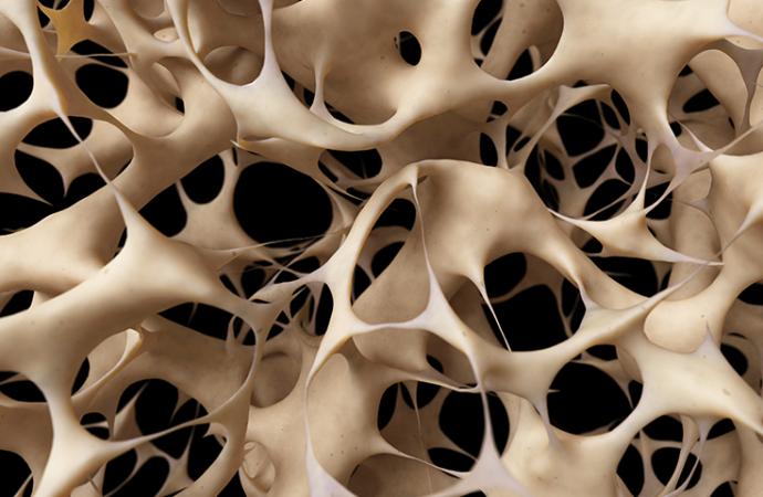 Seis de cada 10 adultos en México tienen mala calidad ósea: IMSS