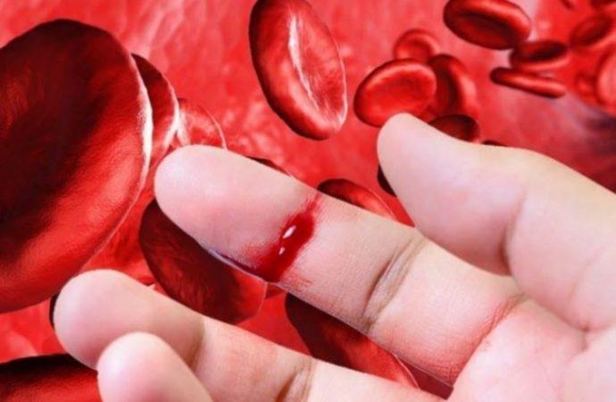 Urge brindar tratamientos suficientes y oportunos para los pacientes con Hemofilia del Seguro Popular, recomienda FHRM