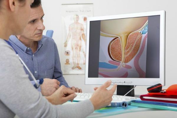 Atención óptima y tratamientos: deuda pendiente  a pacientes con Cáncer de Próstata