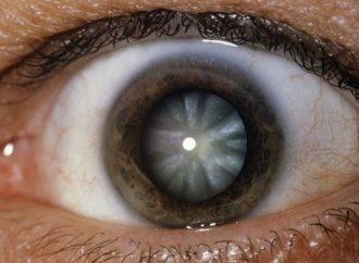 APEC extiende exitosa campaña de cirugías oculares