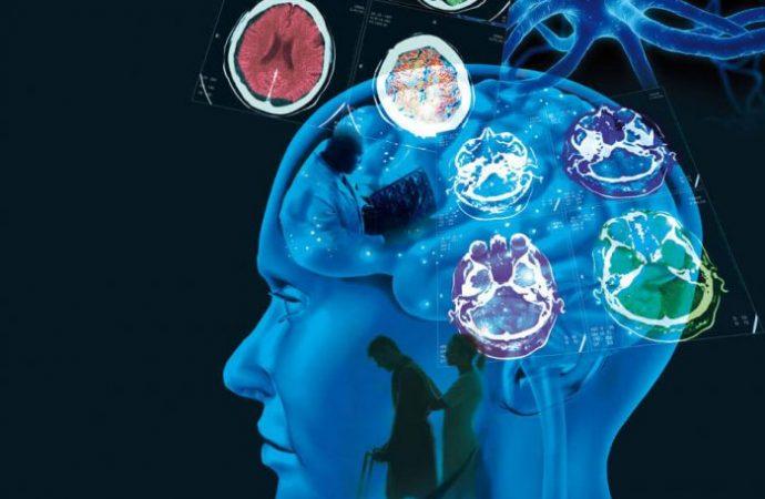 Esclerosis Múltiple, enfermedad incurable que afecta a más de 20 mil mexicanos