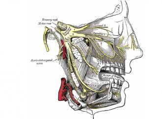 Con microcirugía es posible sanar dolor de nervio trigémino