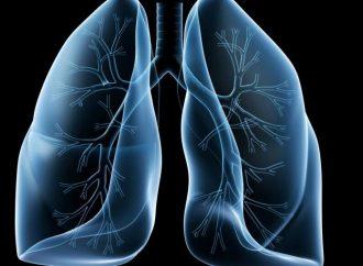 Ultrasonido, clave en la prevención de Enfermedad Pulmonar Intersticial