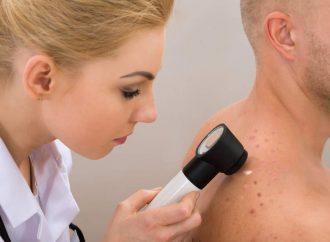 México, sin suficientes especialistas para atender enfermedades de la piel