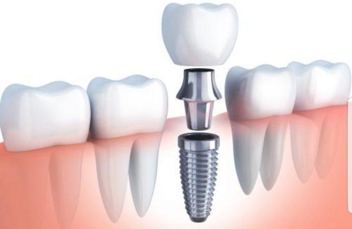 Riesgos de los implantes dentales por marcas no reguladas y malos diagnósticos