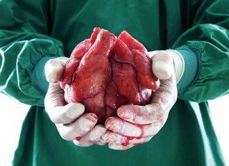 IMSS cumple 31 años del primer transplante de corazón