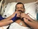 Felix Gretarsson, primera persona en recibir trasplante de brazos y hombros