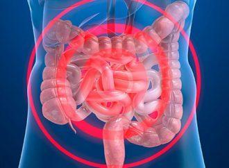 Enfermedad Inflamatoria Intestinal afecta más a la población del norte del país