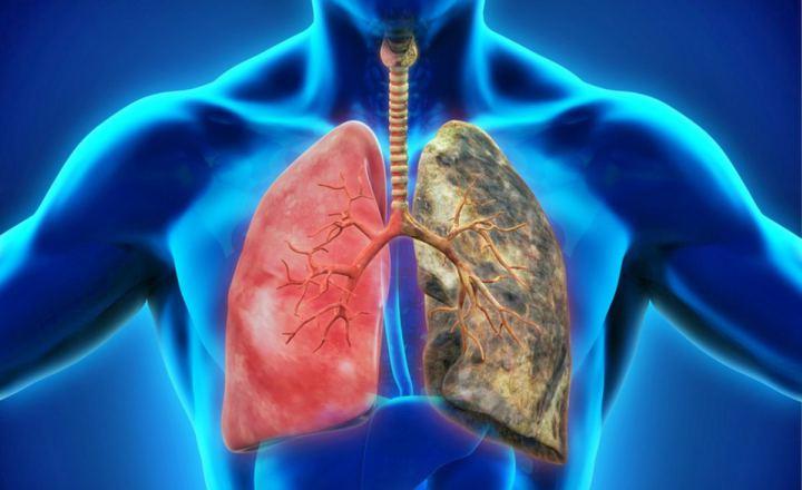 EPOC, enfermedad potencialmente mortal