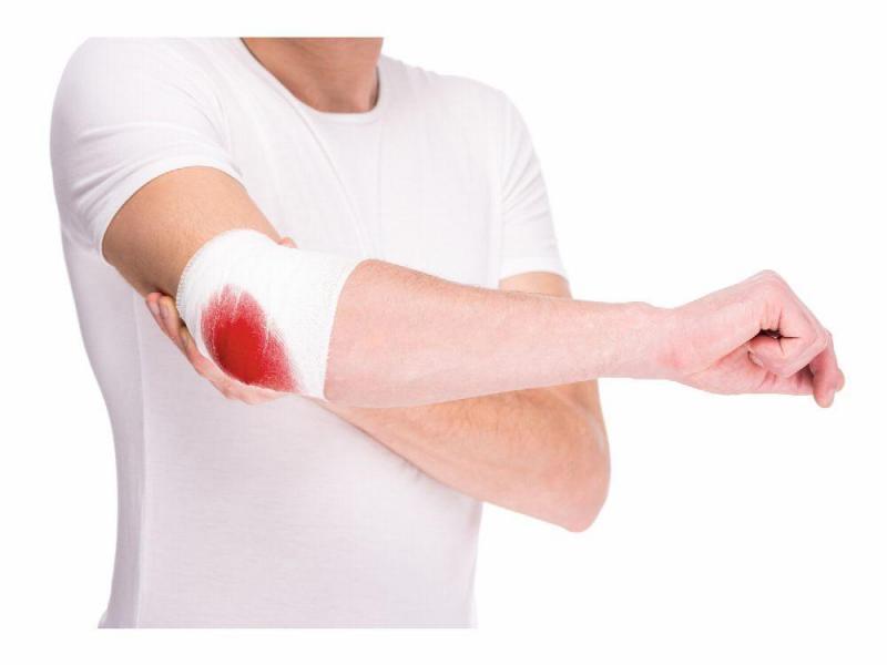 El cambio radical en la vida de un paciente con hemofilia con el uso de profilaxis