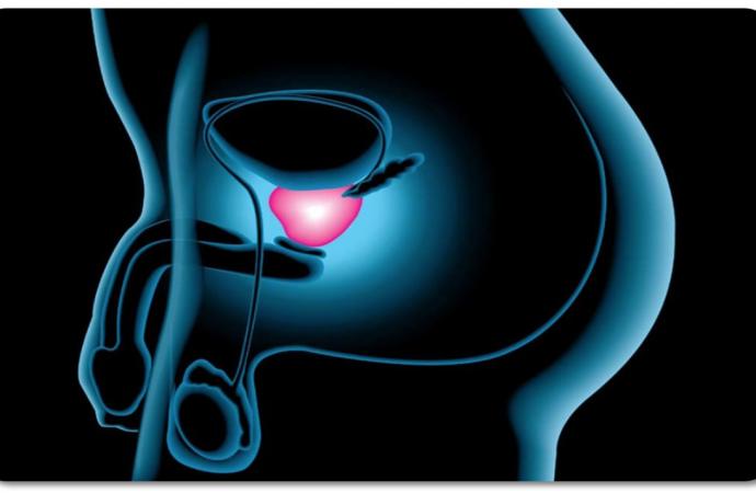 A mayor edad, aumenta el riesgo de cáncer de próstata