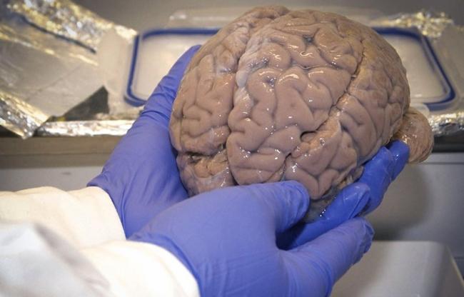 El cerebro de los psicópatas comienza a madurar en la infancia