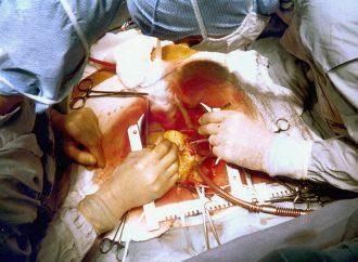 Enfermedades del corazón, pandemia permanente